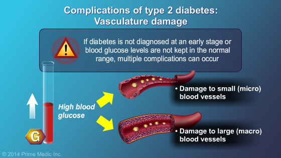 The early stage of type 2 diabetes is characterised by insulin resistance  (probably due to changes in the insulin receptor) followed by beta cell  failure ...